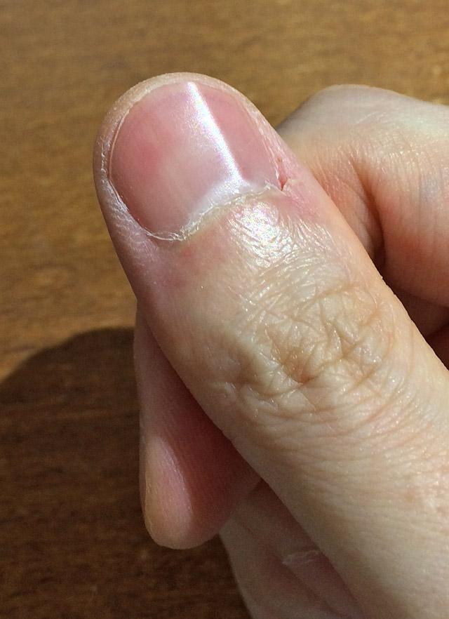 爪に光沢が生まれます
