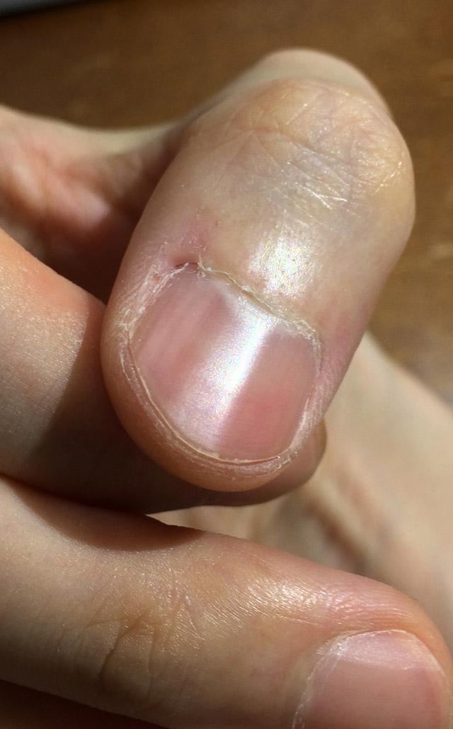 爪に清潔感も生まれました。