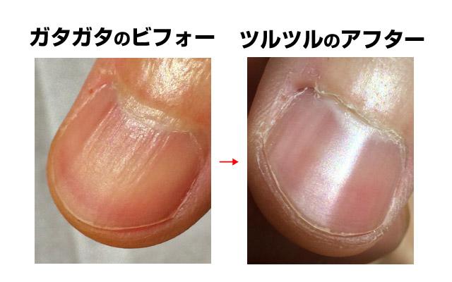 爪磨き、ビフォーアフター