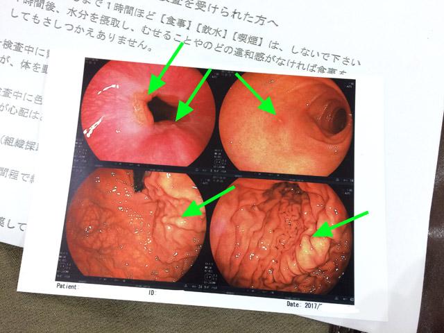 胃カメラ検査の結果・写真