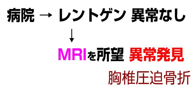 レントゲン異常なし、MRIで胸椎圧迫骨折を発見