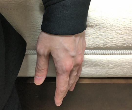 Mサイズだと手首まで隠れます。